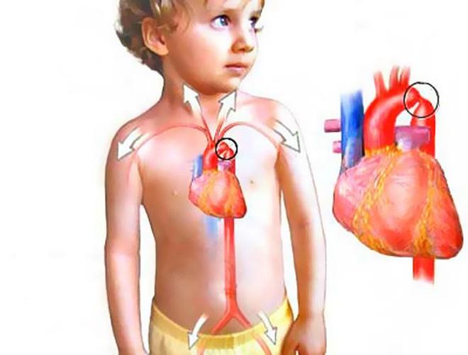 Особенности заболевания в детском возрасте