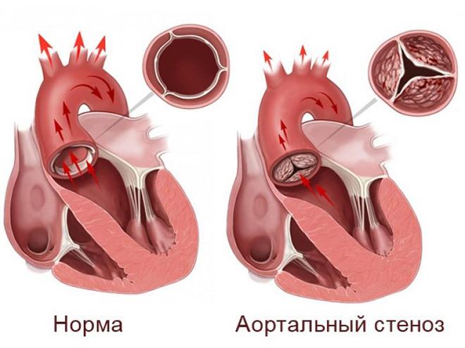 Степени аортальной недостаточности
