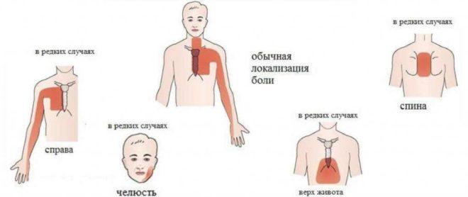Локализация неприятных симптомов