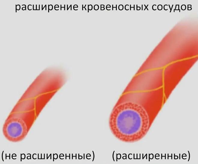 Расширение кровеносных сосудов