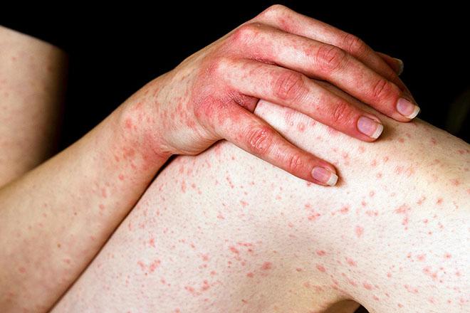 Причины аллергического васкулита