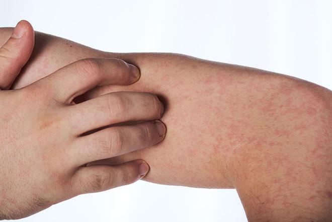Классификации алергического васкулита