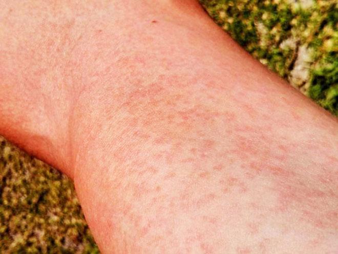 Симптомы аллергического васкулита