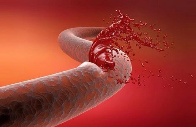 Паренхиматозное кровотечение