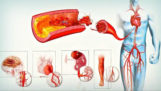 Что происходит при паренхиматозном кровотечении