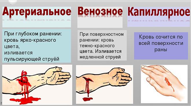 Виды паренхиматозного кровотечения