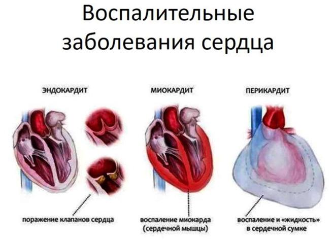 Воспалительные патологии сердца