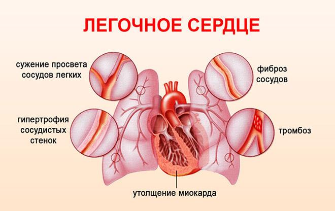 Симптомы легочного сердца
