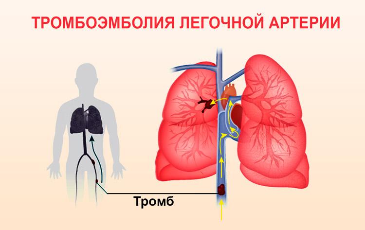 Суть патологии легочного сердца