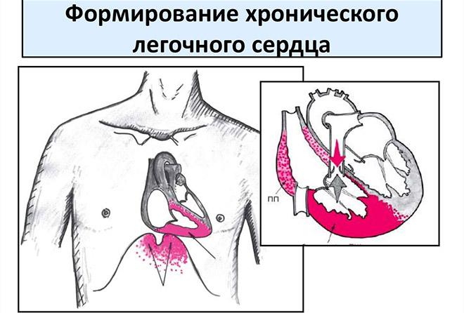 Причины формирования легочного сердца