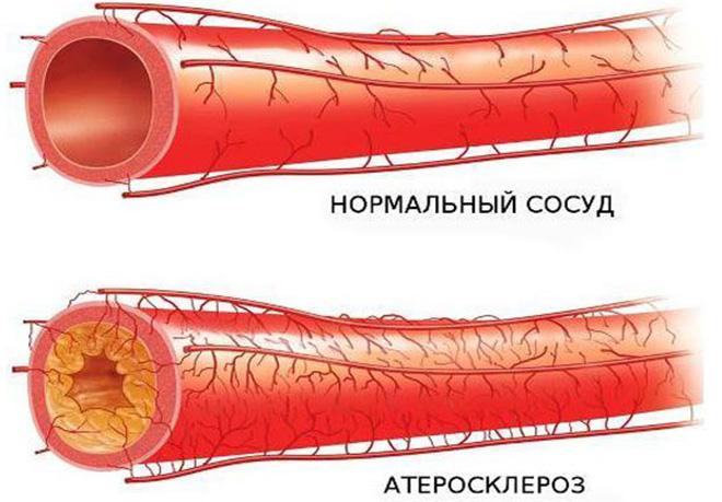 Классификация атеросклероза