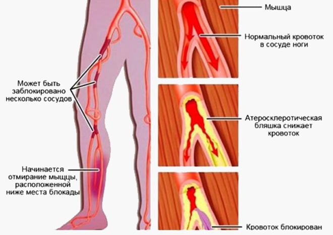 Нестенозирующий атеросклероз артерий нижних конечностей