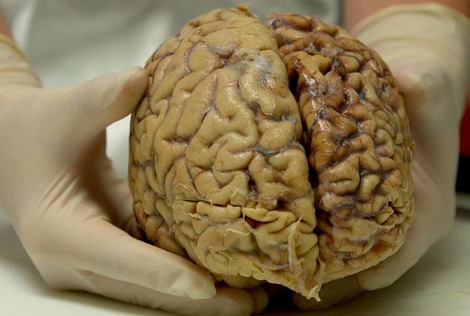 Прогноз развития сосудистой энцефалопатии