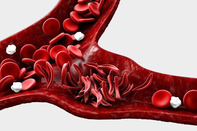 Серповидноклеточная анемия суть патологии