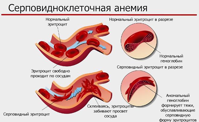 Серповидноклеточная анемия: развитие заболевания