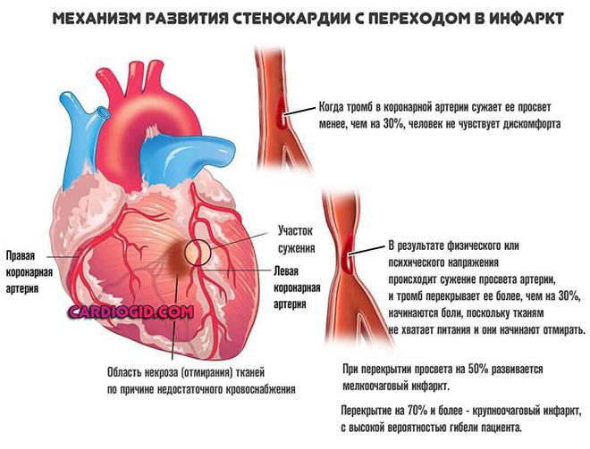 Симптомы стенокардии