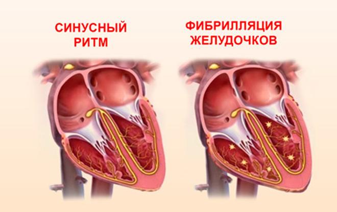 Причины возникновения фибрилляции сердца