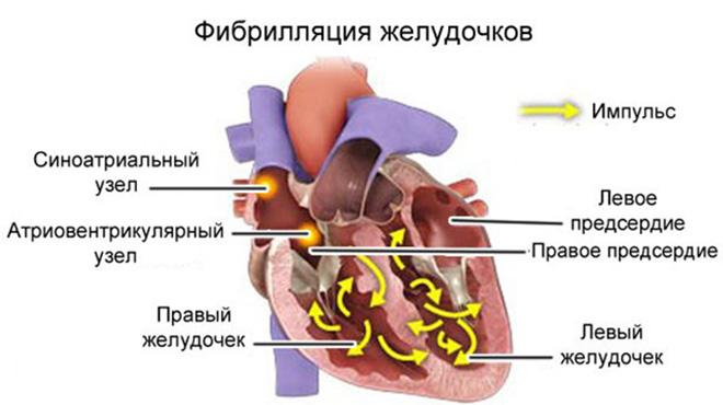 Нарушение функции сердца