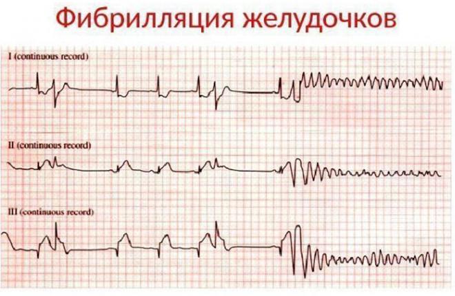 Классификация фибрилляции сердца